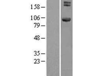 Transient overexpression lysate of hook homolog 1 (Drosophila) (HOOK1)