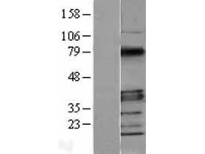 Transient overexpression lysate of myeloid differentiation primary response gene (88) (MYD88)