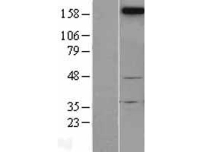 Transient overexpression lysate of neogenin homolog 1 (chicken) (NEO1)