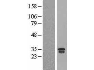 Transient overexpression lysate of lipocalin 2 (LCN2)