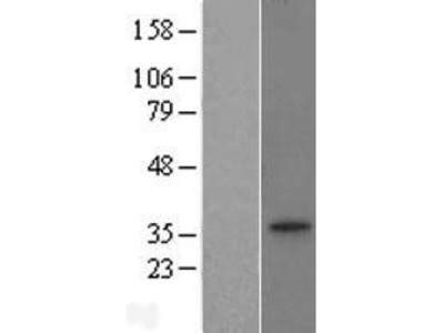 Citrate transport protein (SLC25A1) (NM_005984) Human Over-expression Lysate from OriGene Technologies