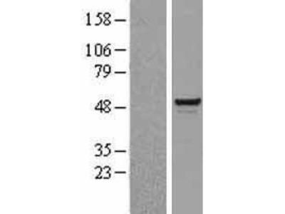 Transient overexpression lysate of SWI/SNF related, matrix associated, actin dependent regulator of chromatin, subfamily e, member 1 (SMARCE1)