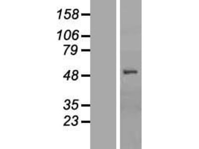 OATP2 (SLCO1B1) (NM_006446) Human Over-expression Lysate