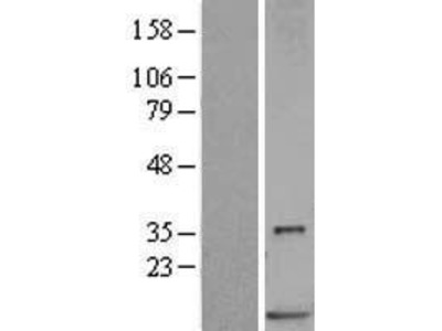 Transient overexpression lysate of S100 calcium binding protein P (S100P)