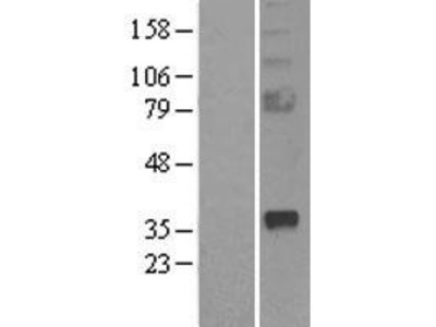 Transient overexpression lysate of secreted frizzled-related protein 2 (SFRP2)