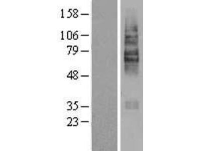 Transient overexpression lysate of solute carrier family 22 (organic cation/carnitine transporter), member 5 (SLC22A5)