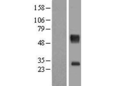 Transient overexpression lysate of solute carrier family 16, member 11 (monocarboxylic acid transporter 11) (SLC16A11)