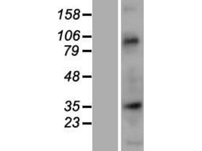 Transient overexpression lysate of nucleoporin 35kDa (NUP35)