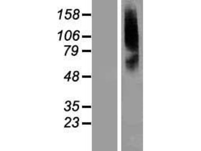 Transient overexpression lysate of solute carrier family 22 (organic anion transporter), member 8 (SLC22A8)