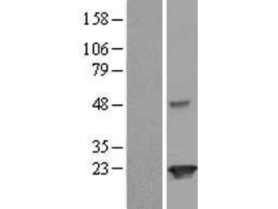 Transient overexpression lysate of Josephin domain containing 2 (JOSD2)