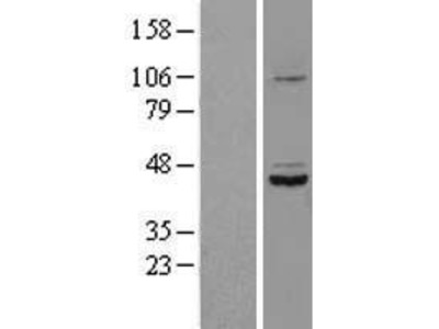 Transient overexpression lysate of suppressor of defective silencing 3 homolog (S. cerevisiae) (SUDS3)