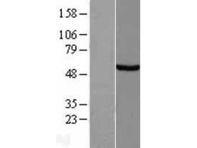 Transient overexpression lysate of sestrin 2 (SESN2)