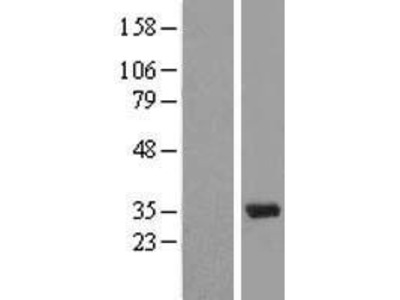 U1A (SNRPA) (NM_004596) Human Over-expression Lysate