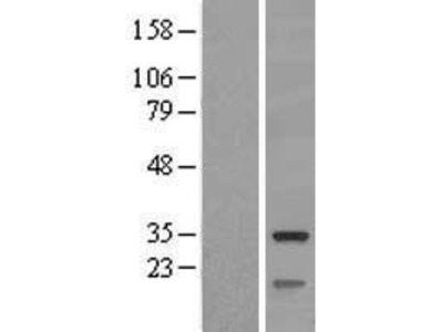 Mitochondrial dicarboxylate carrier (SLC25A10) (NM_012140) Human Over-expression Lysate