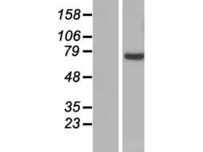 SLC25A13 (NM_014251) Human Over-expression Lysate