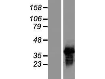 SFRS7 (SRSF7) (NM_001031684) Human Over-expression Lysate