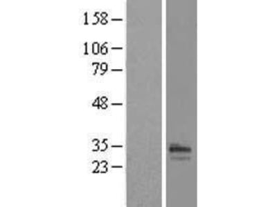 Transient overexpression lysate of receptor (chemosensory) transporter protein 1 (RTP1)