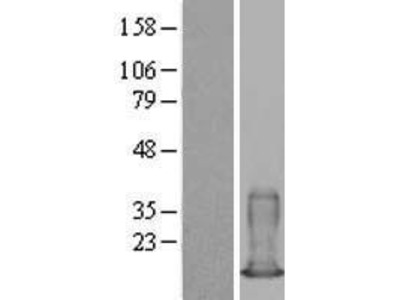 Transient overexpression lysate of S100 calcium binding protein A6 (S100A6)