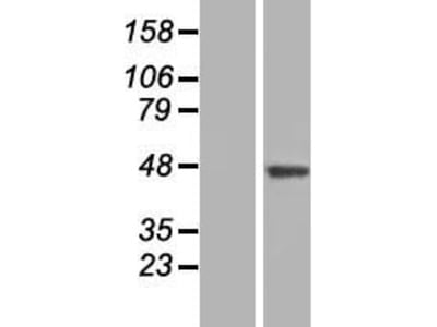 SLC35B3 (NM_015948) Human Over-expression Lysate