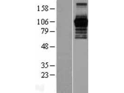 Transient overexpression lysate of PHD finger protein 15 (PHF15)