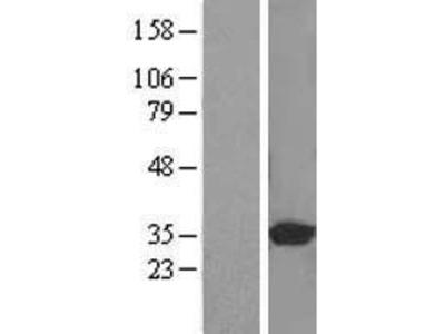 Transient overexpression lysate of phosphatidylinositol transfer protein, beta (PITPNB)
