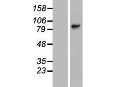 Transient overexpression lysate of solute carrier family 6 (neutral amino acid transporter), member 15 (SLC6A15), transcript variant 1