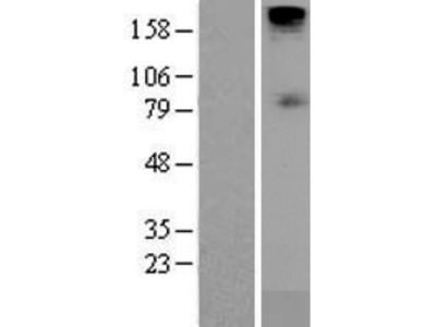 Transient overexpression lysate of solute carrier family 5 (sodium/glucose cotransporter), member 1 (SLC5A1)