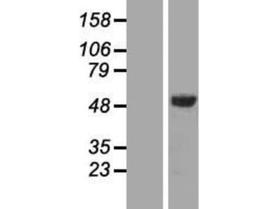 Transient overexpression lysate of STAM binding protein (STAMBP), transcript variant 1