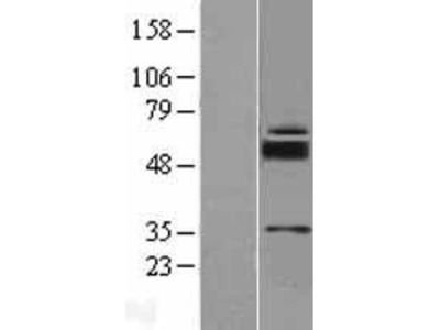 SLC39A11 (NM_139177) Human Over-expression Lysate