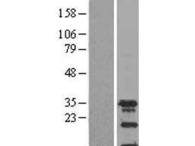 Transient overexpression lysate of spindlin family, member 2A (SPIN2A)