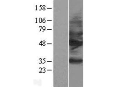 Somatostatin Receptor 2 (SSTR2) (NM_001050) Human Over-expression Lysate