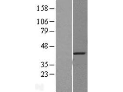 Transient overexpression lysate of single-stranded DNA binding protein 2 (SSBP2)