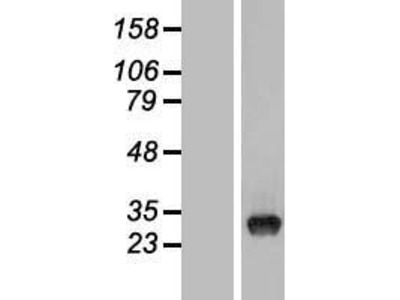 Transient overexpression lysate of tRNA-yW synthesizing protein 3 homolog (S. cerevisiae) (TYW3), transcript variant 1