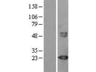 Transient overexpression lysate of visinin-like 1 (VSNL1)