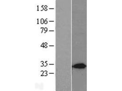 Syntaxin 7 (STX7) (NM_003569) Human Over-expression Lysate