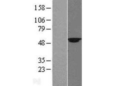 Transient overexpression lysate of suppressor of variegation 4-20 homolog 2 (Drosophila) (SUV420H2)