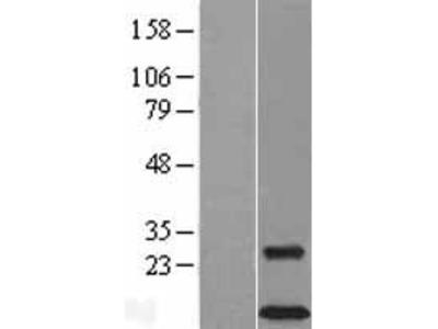 Transient overexpression lysate of TYRO protein tyrosine kinase binding protein (TYROBP), transcript variant 1