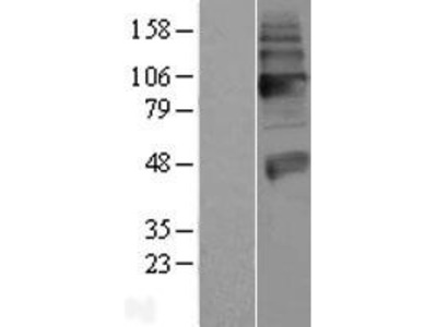 Transient overexpression lysate of solute carrier family 18 (vesicular acetylcholine), member 3 (SLC18A3)