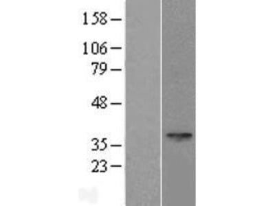 SPEM1 (NM_199339) Human Over-expression Lysate