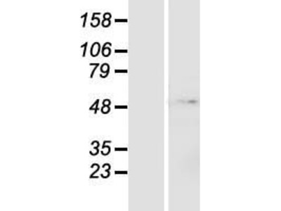 ZNF643 (ZFP69B) (NM_023070) Human Over-expression Lysate
