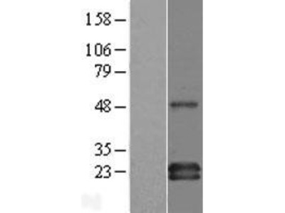 Transient overexpression lysate of GRB2-binding adaptor protein, transmembrane (GAPT)