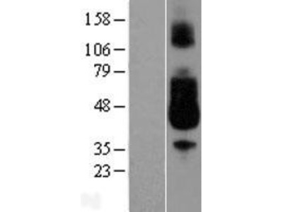 Transient overexpression lysate of Fc fragment of IgA, receptor for (FCAR), transcript variant 1