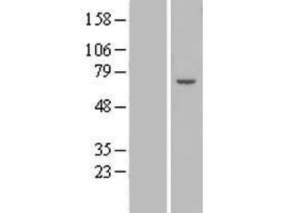 Transient overexpression lysate of zinc finger protein 82 homolog (mouse) (ZFP82)