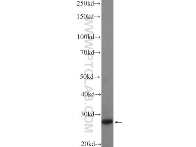 CFD Antibody