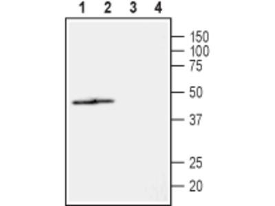 Anti-NIPA2 (extracellular) Antibody