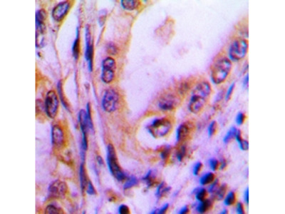 THBS4 / Thrombospondin 4 Antibody