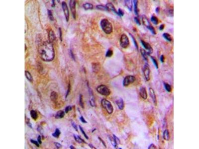 BABP / AKR1C2 Antibody