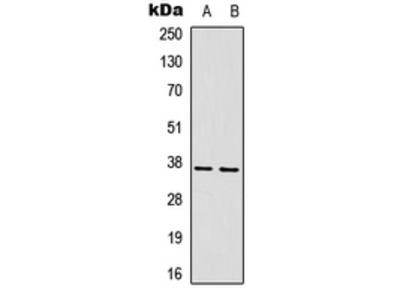ART1 /CD296 Antibody