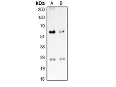 PROCR / EPCR Antibody