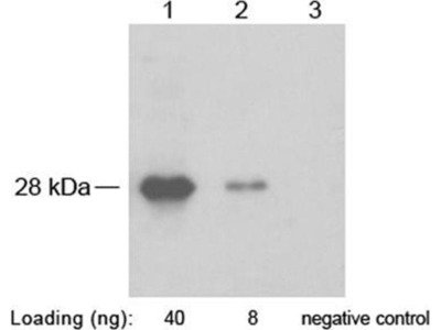 anti-SNAP Tag antibody